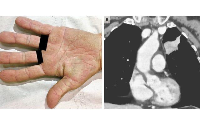 女性の「ビロードのような」手のひらが彼女の肺がんを明らかにした