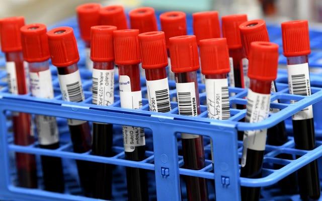 潜在的な癌リスクを超えて中断された有望な遺伝子治療試験
