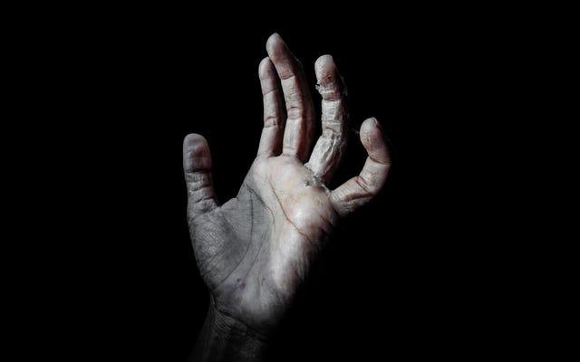 助けてください、私の手はすべての洗濯から耐えられないほど乾燥しています!