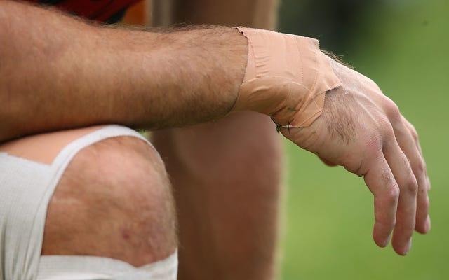 科学者たちは、痛みを処理する皮膚の新しい器官を発見したと言います