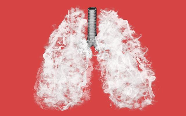 Qu'est-il arrivé à la maladie pulmonaire de vapotage?