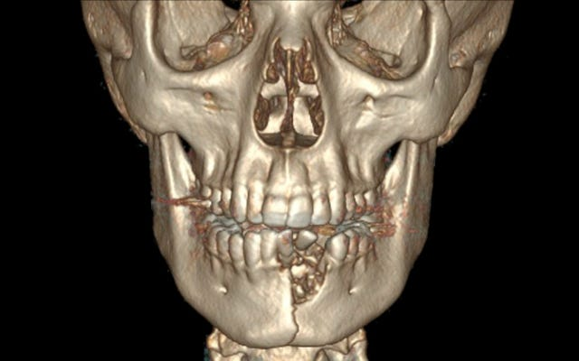 Un adolescent a la bouche fermée après que la vape explose, se fracturant la mâchoire et lui cassant les dents