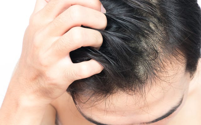 この冬、頭皮を角質除去してフレークフリーを維持する方法