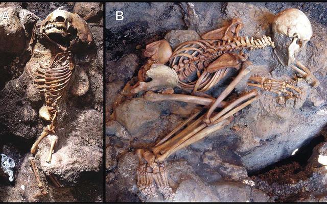 Saat gunung berapi menguapkan darah dan meledakkan otak: kematian yang mengerikan dari para korban Vesuvius