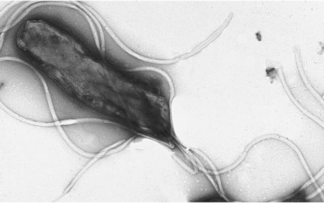 Vi khuẩn gây loét dạ dày cũng trở nên kháng thuốc