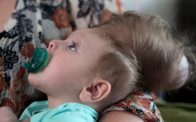 先駆的な手術によって救われた頭蓋骨の外で脳が成長している乳児