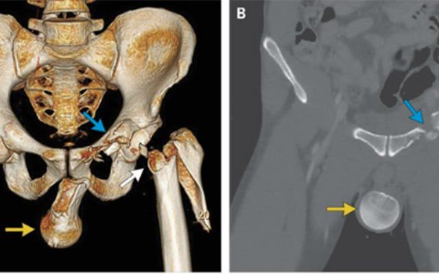 オートバイ事故後、男性の大腿骨がボールサックに入る[NSFW]