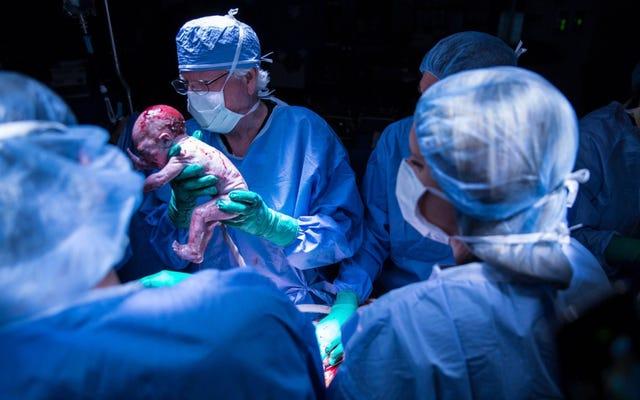 米国は、膣なしで生まれた女性が子供を産むことに初めて成功しました