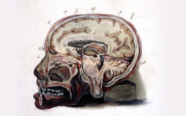 脳に残された:MRI薬からの潜在的に有毒な残留物