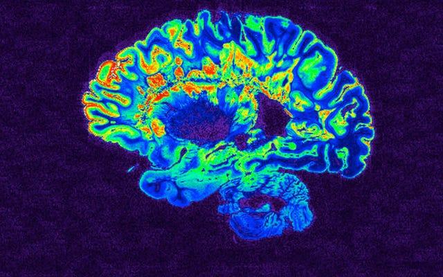 Monyet yang Dibius Bangun Seketika Saat Peneliti Merangsang Wilayah Otak Terkait dengan Kesadaran
