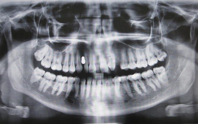 彼らは、アルツハイマー病に対する新薬が空洞のある歯を再生できることを発見しました
