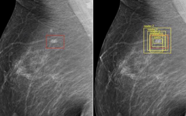 GoogleのAIは、医師よりも乳がんの検出に優れていることを証明しています