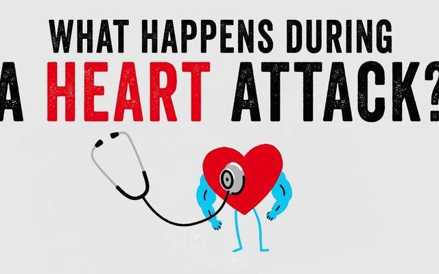 心臓発作の間に何が起こるか、そしてそれがどのように扱われるか