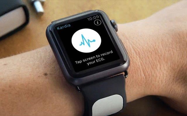 賢い新しいストラップがAppleWatchにEKG測定値をもたらします