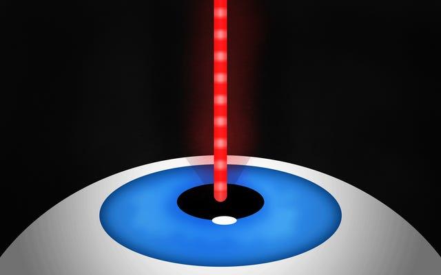 レーザーで眼球を撃ってスーパービジョンを手に入れた方法