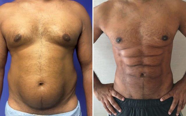 ジムをスキップすると、形成外科医はおなかの脂肪を奇妙な彫りの深い6パックに彫ることができます