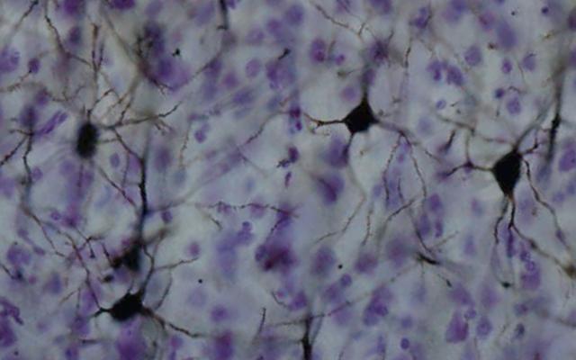 Ahli Saraf Menemukan Jenis Sinyal Baru di Otak Manusia
