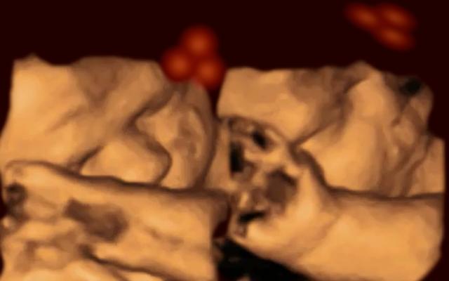 この物議を醸す研究によると、赤ちゃんは胎内にいるときでも顔を認識します