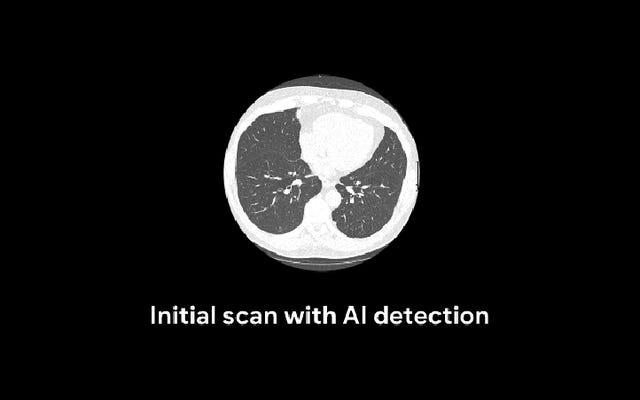 Des chercheurs de Google ont formé un algorithme pour détecter le cancer du poumon mieux que les radiologues