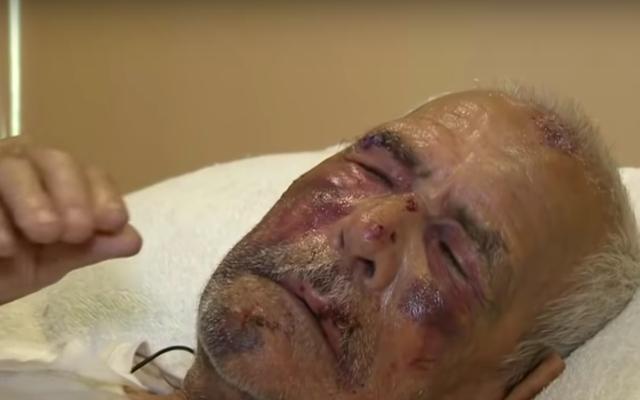 「あなたの国に帰れ」:7月4日の攻撃中にレンガで殴られたメキシコの老人[更新]