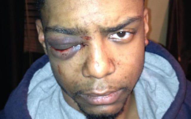 ゲイマンは、NYPDへのグループの「特別な接続」でハシディズムの安全パトロールによる残忍な2013年の殴打を非難