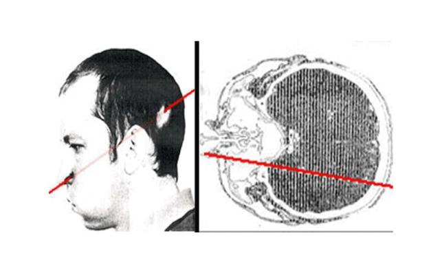 Was passiert, wenn Sie Ihren Kopf in einen funktionierenden Teilchenbeschleuniger stecken: den Petrovich-Vorfall?