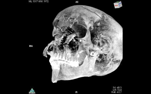 La mort horrible d'un pharaon égyptien détaillée dans une nouvelle étude