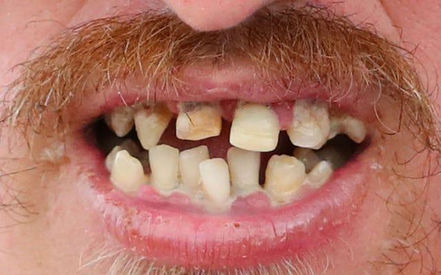 ドイツのサッカー選手が噛み付いた(そして多分食べた?)相手の鼻の塊