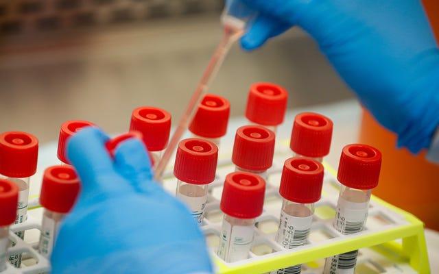 Dapatkah Ilmuwan Membenarkan Infeksi Virus Corona yang Disengaja untuk Mempercepat Pembuatan Vaksin?