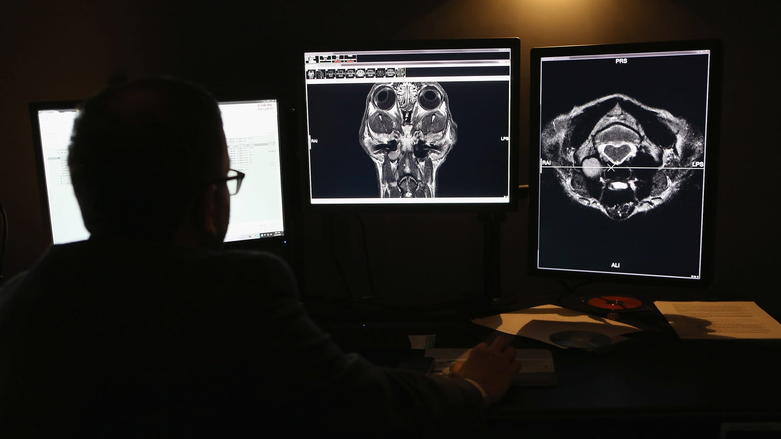 Anyone Can Look at Millions of Americans' Medical Images and Data, Report Finds