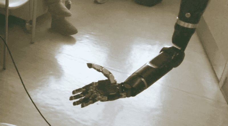 Brain Implant Will Let Amputees Move Individual Fingers on Prosthetics With Thoughts Alone