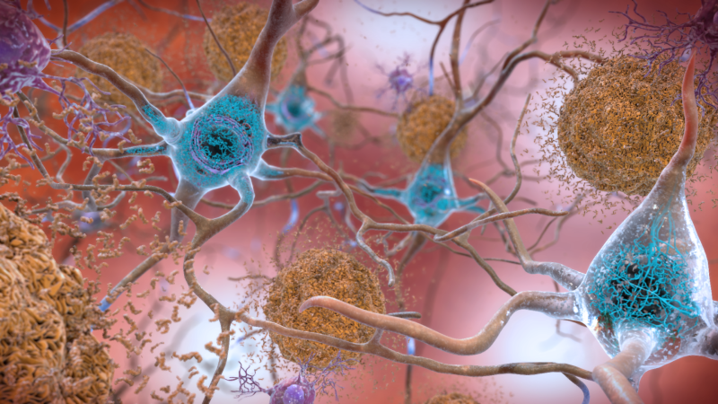 Una ilustración de placas, visto en marrón, y enredos, visto en azul, en el cerebro. Ilustración: NIH (Flickr)