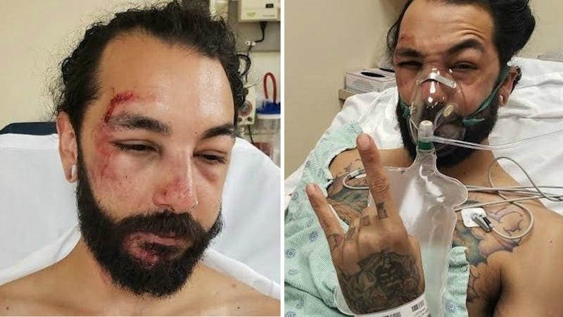 Man Wants Court to Get E-Scooter Data to ID the Hit-and-Run Rider Who Put Him in the Hospital