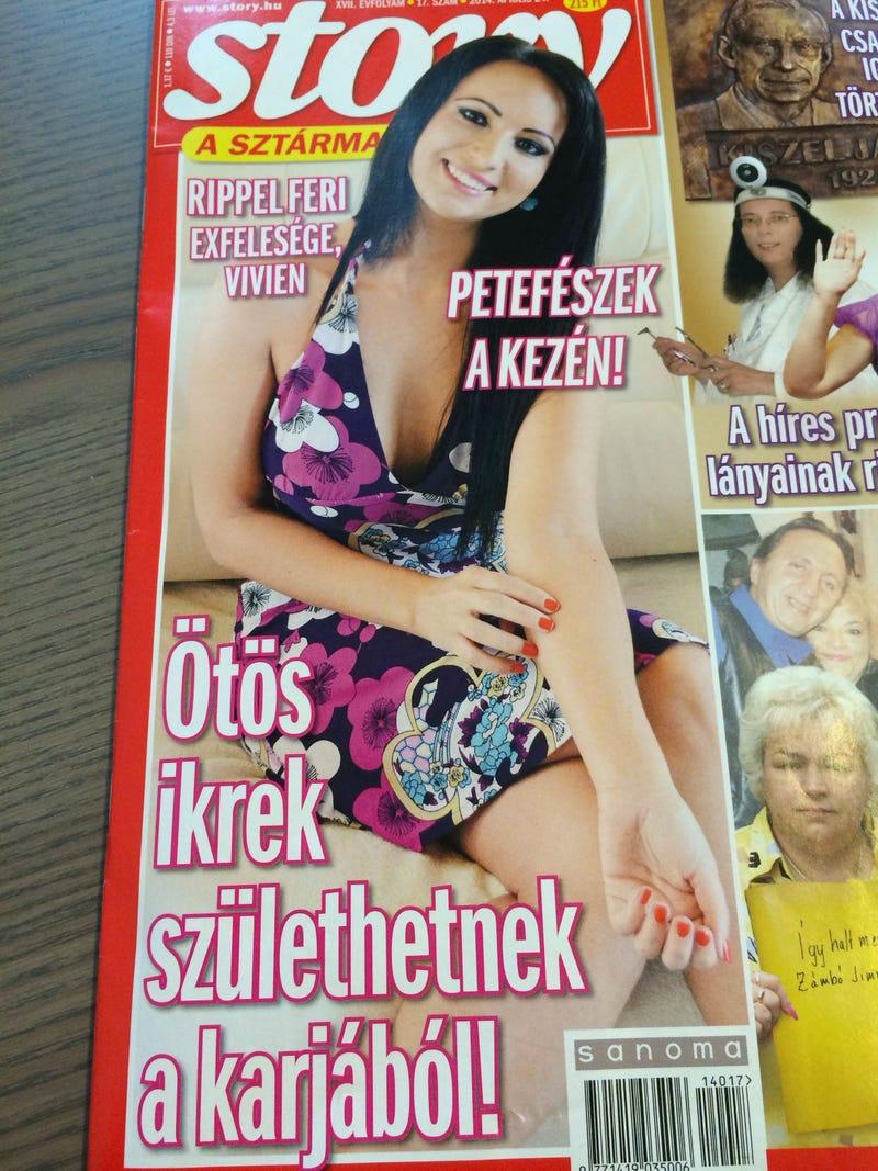 Illustration for article titled Gusztustalansági rekord a Story címlapján: petefészek nőtt Vivi kezére