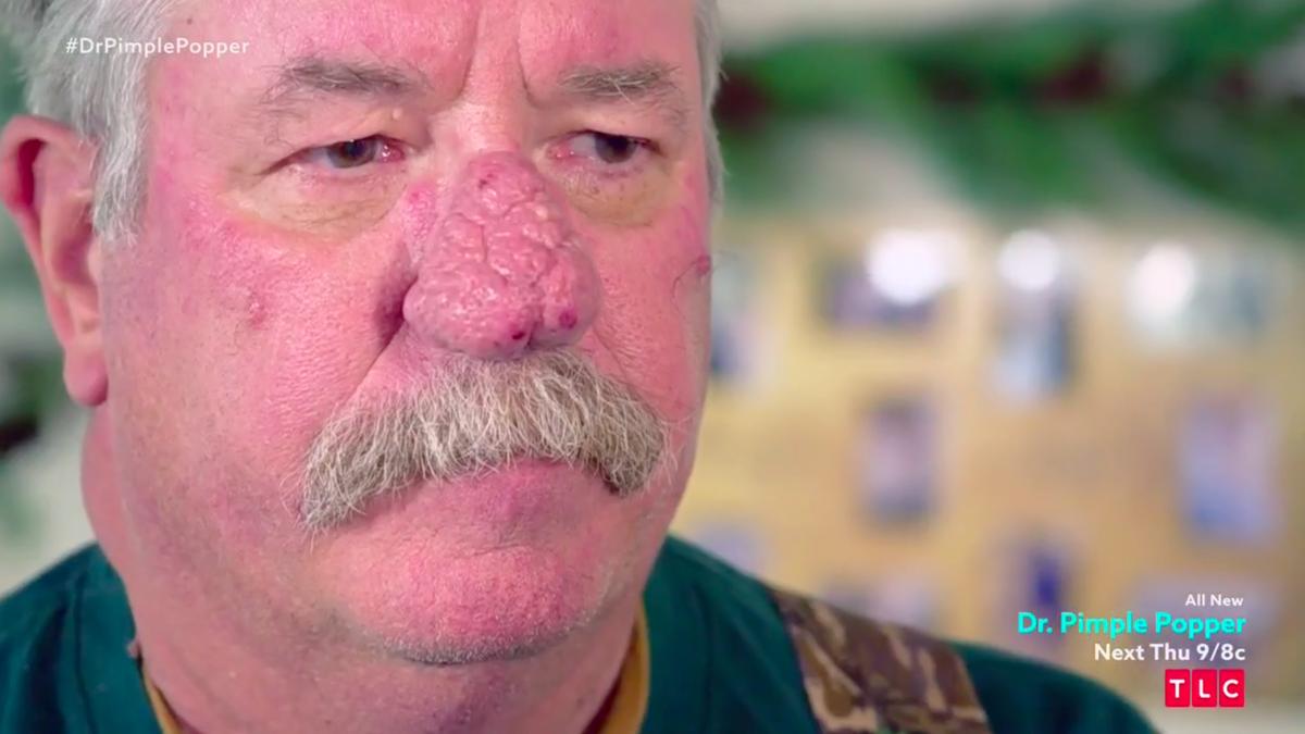 dr pimple popper nose