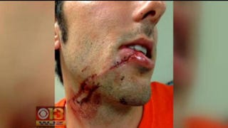A man who authorities say was assaulted in Baltimore Aug. 21, 2014, shows injuries he suffered in the attack that he believes was a hate crime. CBS Baltimore Screenshot