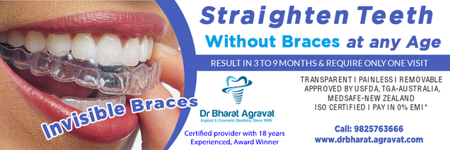 Illustration for article titled Invisible clear braces for teeth cost, price, reviews, pros-cons, before-after from India's leading best cosmetic dentist Bharat Agravat Ahmedabad Gujarat.