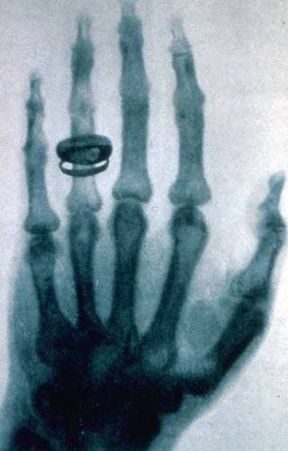 Illustration for article titled This Was The First Human X-Ray Ever Taken