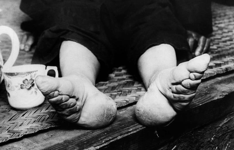 Illustration for article titled El espeluznante proceso chino de los pies de loto: la momificaciónde las extremidades para encontrar pareja