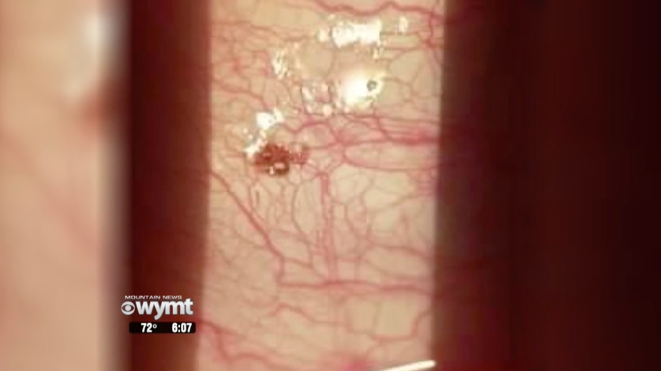 Tick Lodged On Man's Eyeball Made 'Popping Sound' When Doctor Pulled It Off