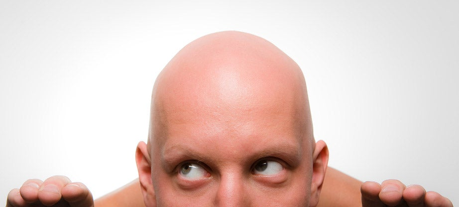 The Best Cure For Balding May Be to Pluck What's Left