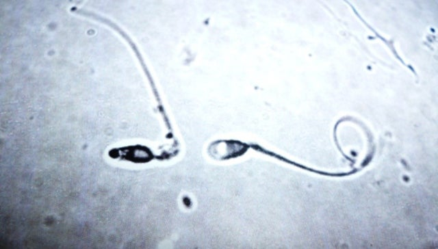 How Do Testicles Know When To Stop Making More Sperm?