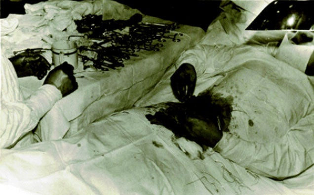 A Soviet Doctor Stranded in Antarctica Had to Cut Out His Own Appendix