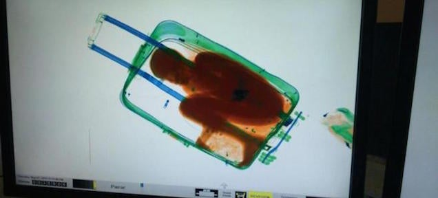 X-ray photos reveal child being smuggled was hidden inside a suitcase