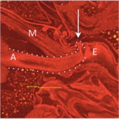 3D Scans Show How Semen Controls Sexual Behaviour in Female Flies