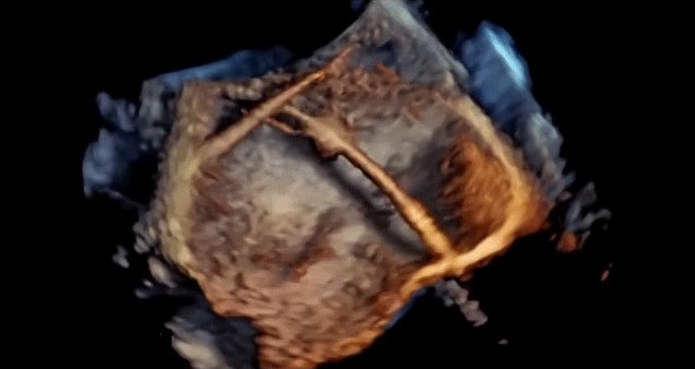 We Can Now See Stunning Real-Time 4D Images of the Heart