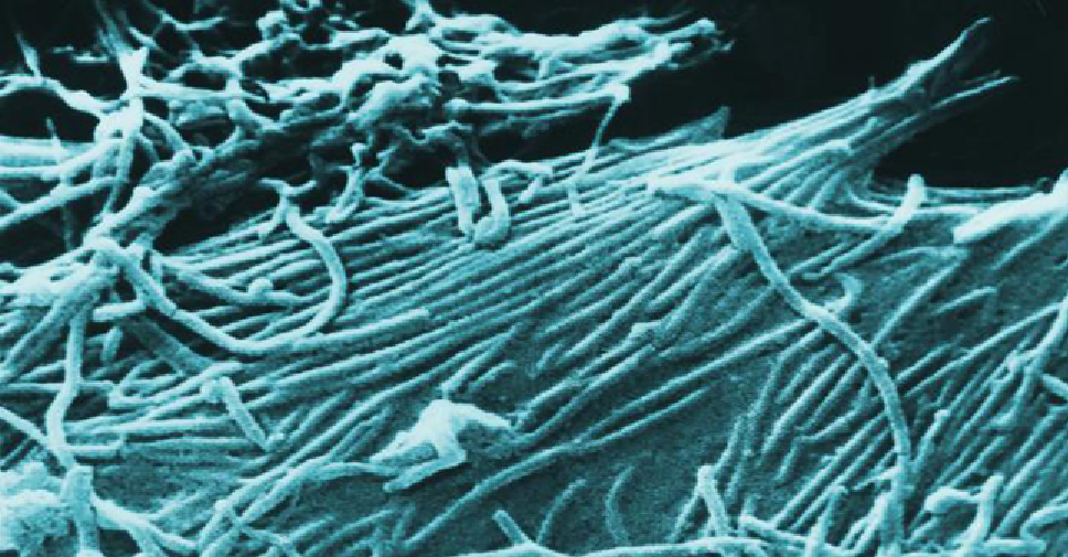 This is How Ebola Resists Treatment with Antibody Cocktails