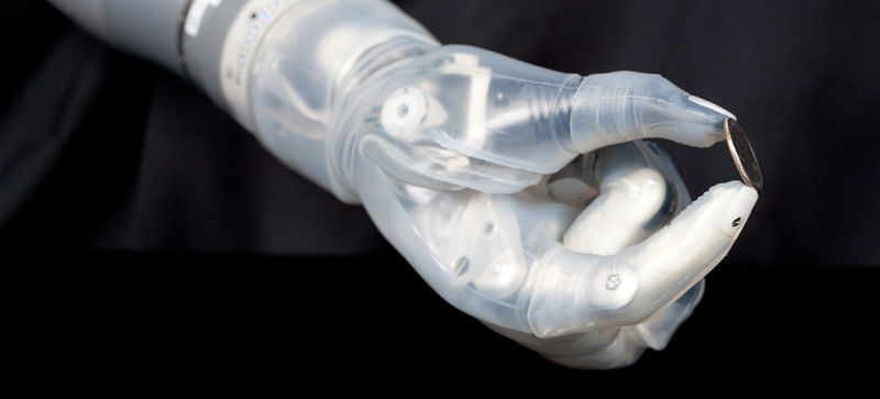 Paralysed Man Successfully Given Prosthetic Hand That Can 'Feel'