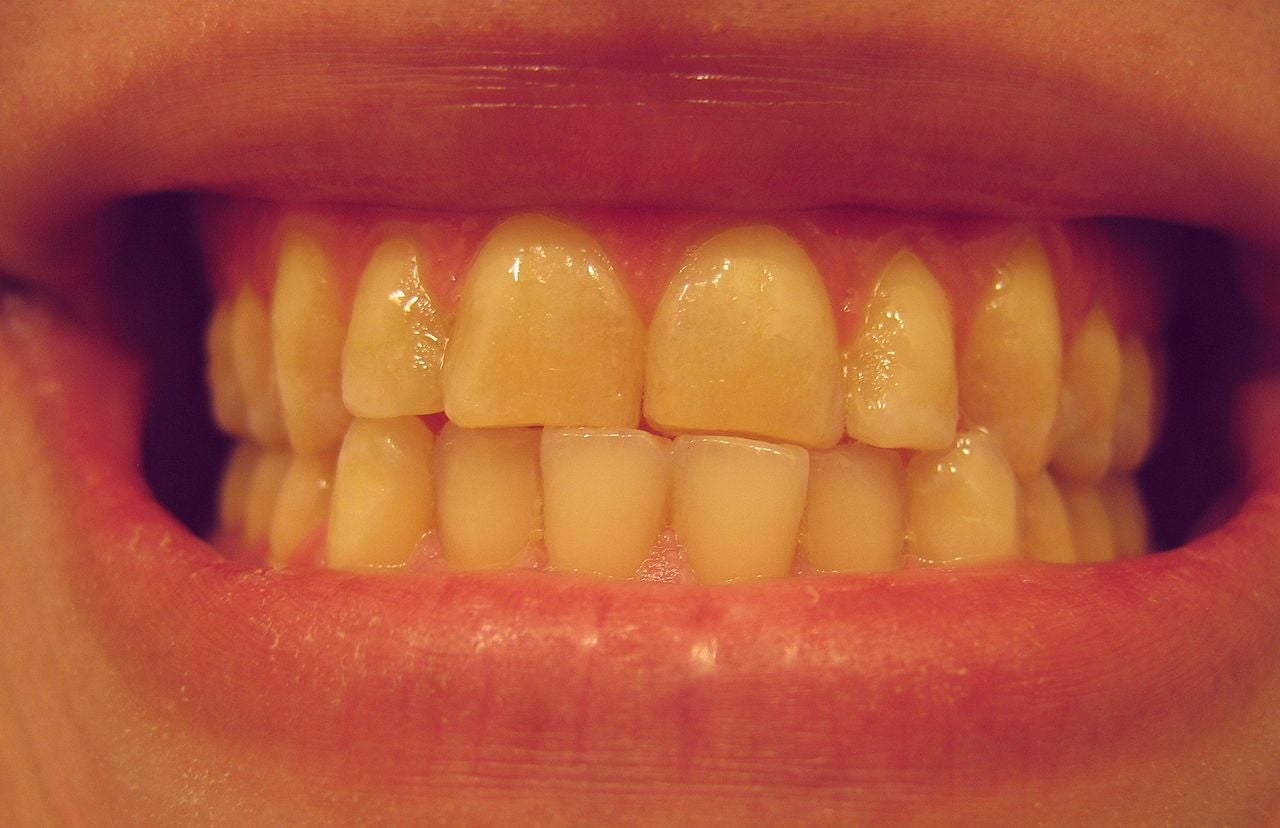 Are You a Nighttime Tooth Grinder? Here's How To Tell — And What to Do About It