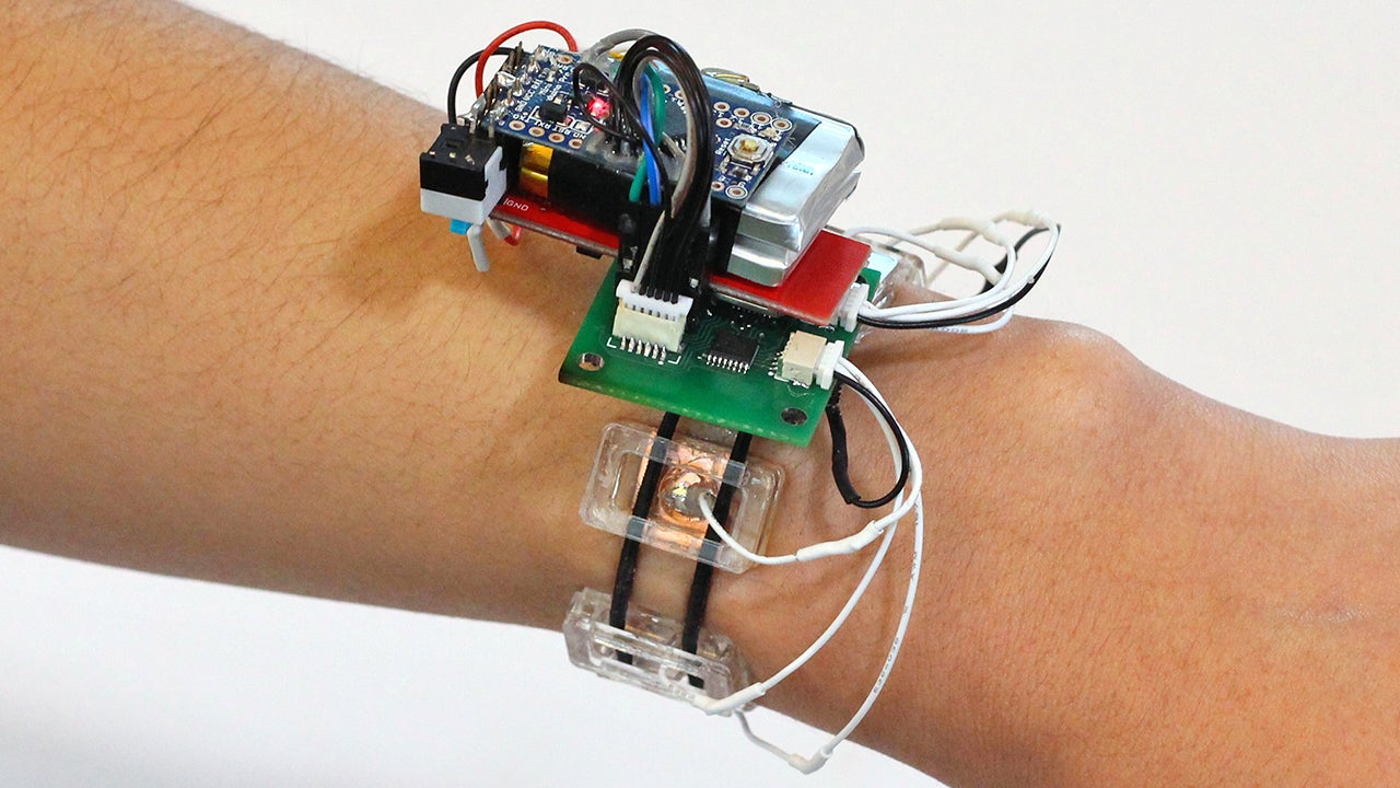 This Smartwatch Detects Gestures By Watching The Muscles Inside Your Arm Move
